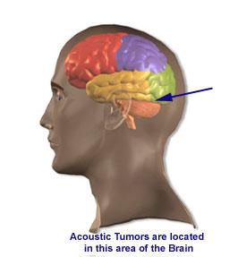 Acoustic Tumor Shot