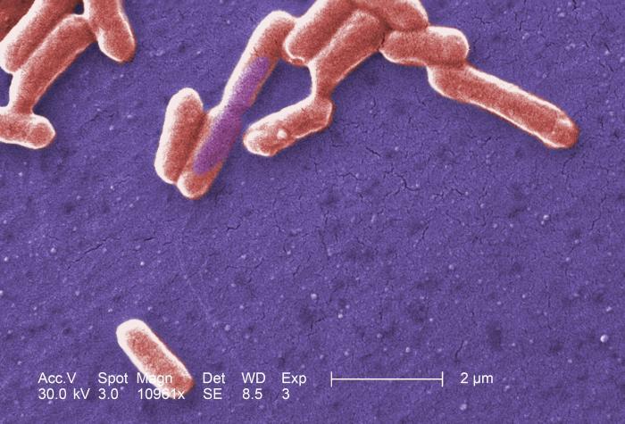 Photo Credit: CDC/ National Escherichia, Shigella, Vibrio Reference Unit at CDC